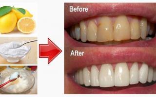 TOP 4 cách làm trắng răng từ chanh cực đơn giản trong 5 phút